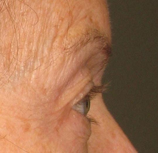 Результаты проведения процедуры на косметологическом аппарате Delly