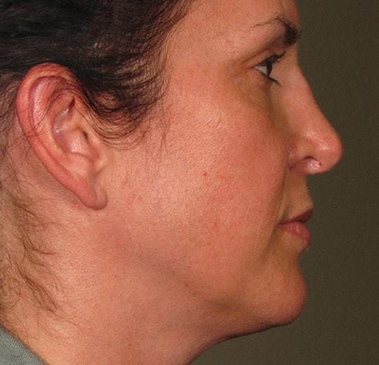 Результаты проведения процедуры на косметологическом аппарате Delly Fix