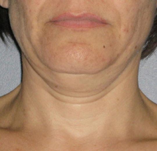 Результаты проведения процедуры на косметологическом аппарате Delly Max