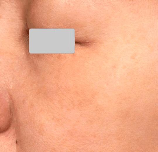 Полезное лечебное воздействие на организм аппарата Fraxel