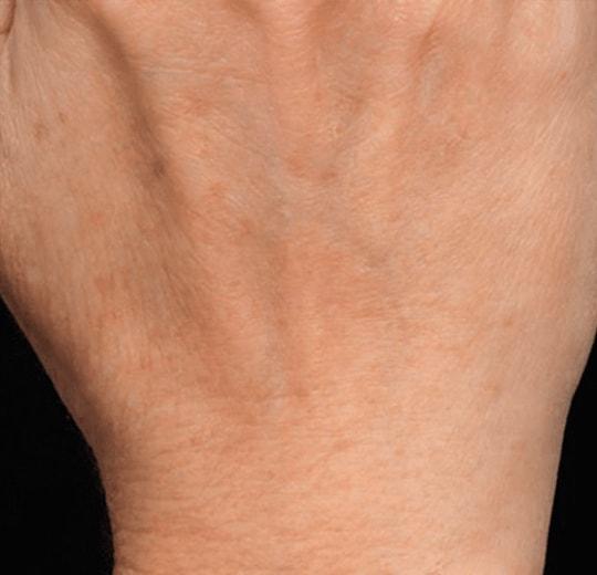 Полезное лечебное воздействие на организм аппарата GALAXY
