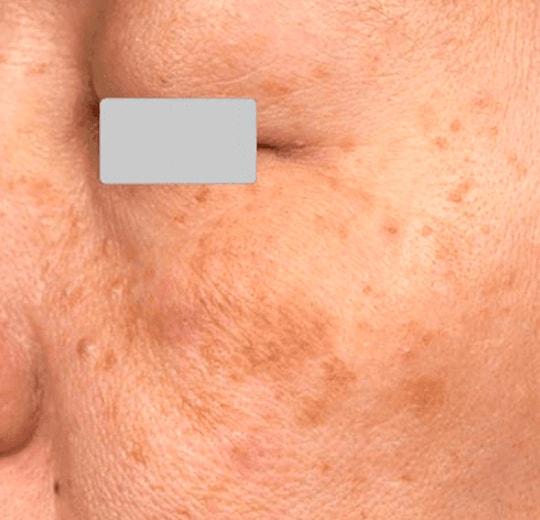 Результаты проведения процедуры на косметологическом аппарате GALAXY