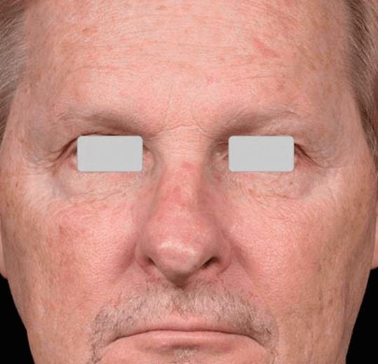 Результаты проведения процедуры на косметологическом аппарате Med-870+