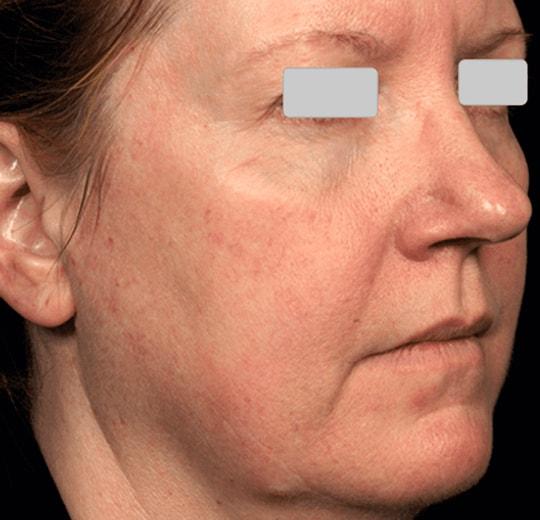 Результаты проведения процедуры на косметологическом аппарате FG 900