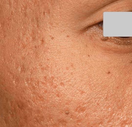 Результаты проведения процедуры на косметологическом аппарате Trixel