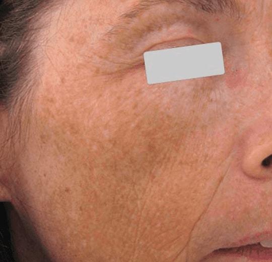Результаты проведения процедуры на косметологическом аппарате PENTAGON GRAND