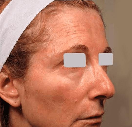 Результаты проведения процедуры на косметологическом аппарате Fraxel
