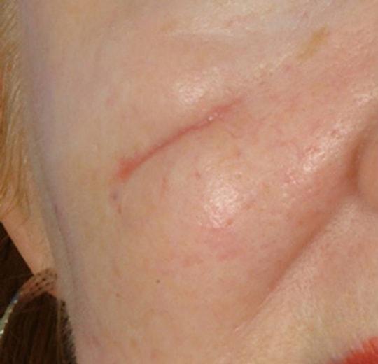 Результаты проведения процедуры на косметологическом аппарате Dana