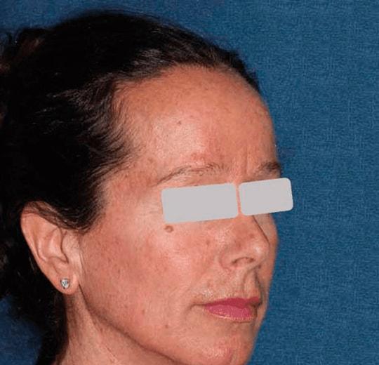 Результаты проведения процедуры на косметологическом аппарате Fraxel Galaxy