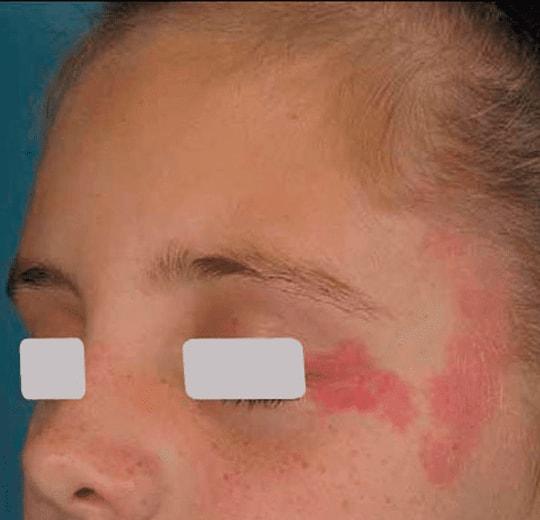 Результаты проведения процедуры на косметологическом аппарате Appolon