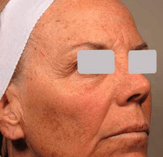 Результаты проведения процедуры на косметологическом аппарате Argus