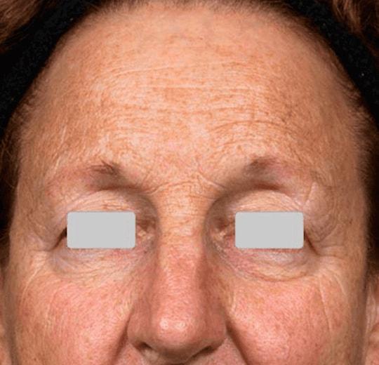 Результаты проведения процедуры на косметологическом аппарате FIRE