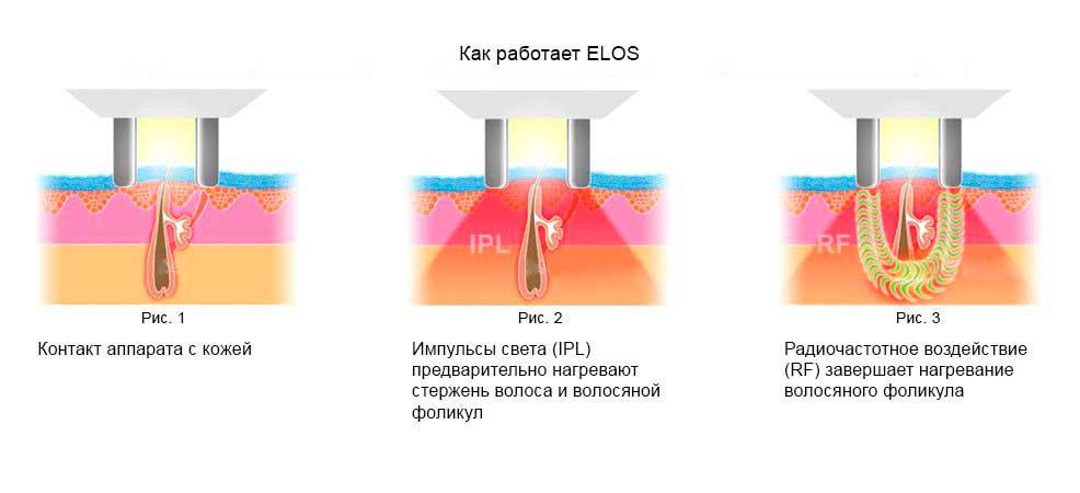 Как работает ЭЛОС?