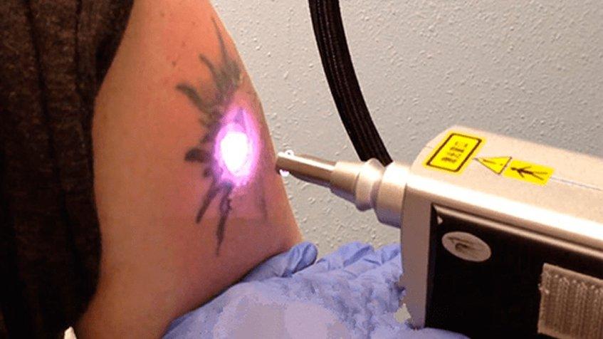 Удаление татуировок аппаратом nd yag